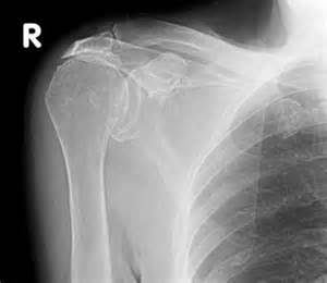 Shoulder - Cuff tear arthropathy