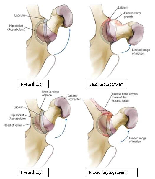 Hip Impingement Surgery via Hip Arthroscopy