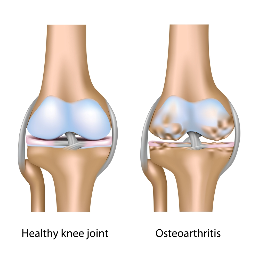 Knee Arthritis AOTS