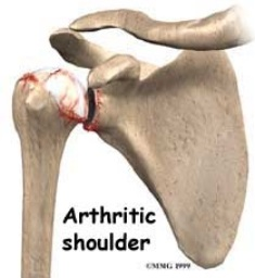 Arthritic Shoulder Adelaide