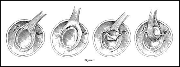 SLAP tear image