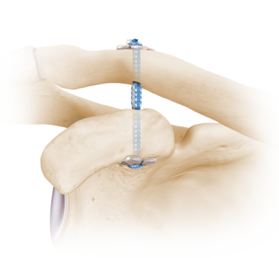 Acromioclavicular Joint Reconstruction All Arthroscopic Adelaide